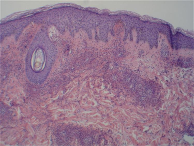 Figura 3: Imagen panorámica con tinción de H&E epidermis acantósica, extravasación eritrocitaria en dermis superficial además infiltrado neutrófilo perivascular, depósito de fibrina en dermis superficial y media