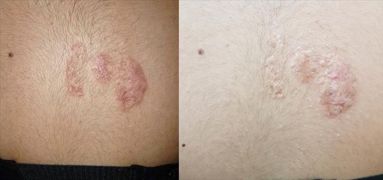 Figura 5 y 6. Evolución 5 y 11 meses después de tratamiento con Yoduro de potasio.