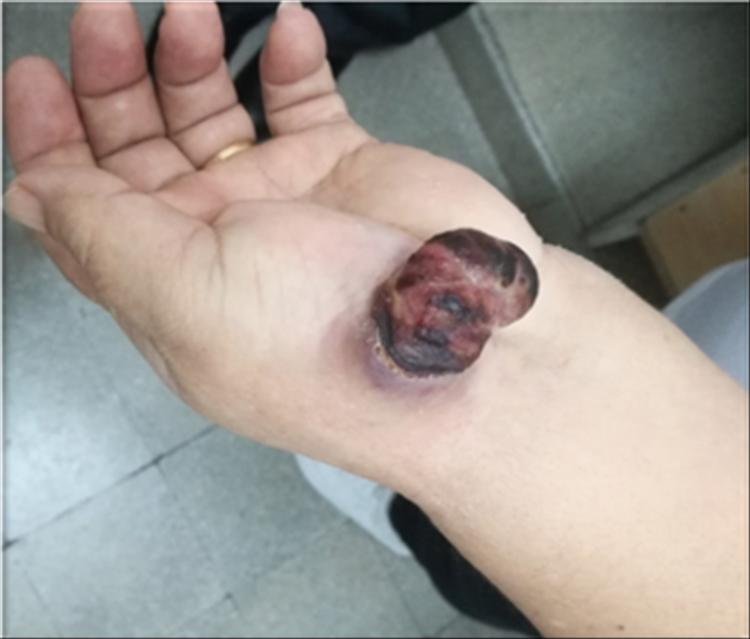 Fig 1: Lesión tumoral exofítica