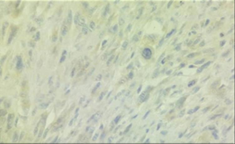 Fig10: 400x HMB 45 Negativo