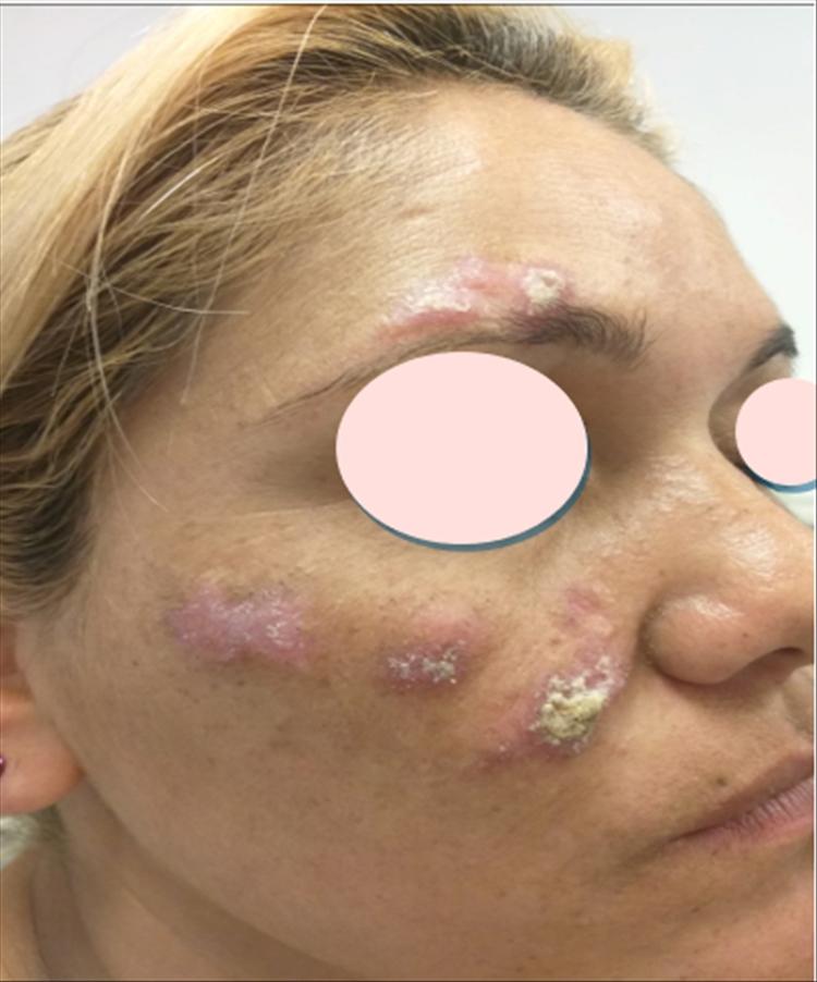 Lupus eritematoso cutáneo subagudo 01