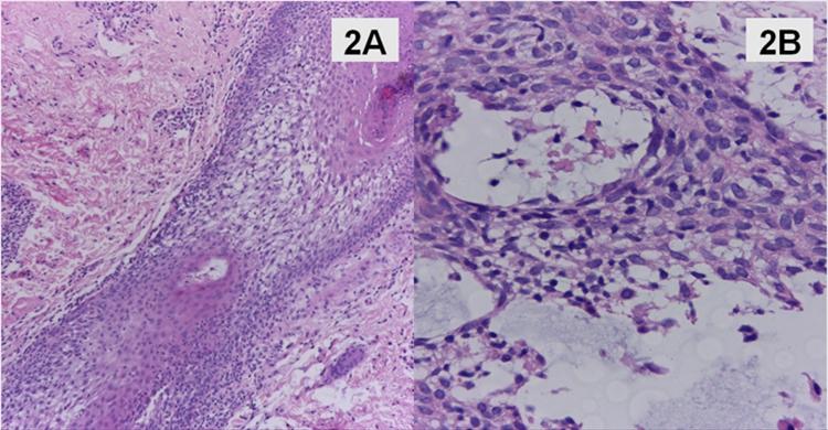 Figuras 2A-2B (HE-10X y 40X). Piel con infiltrado linfoide perifolicular y en el epitelio folicular con degeneración mucinosa acompañante.
