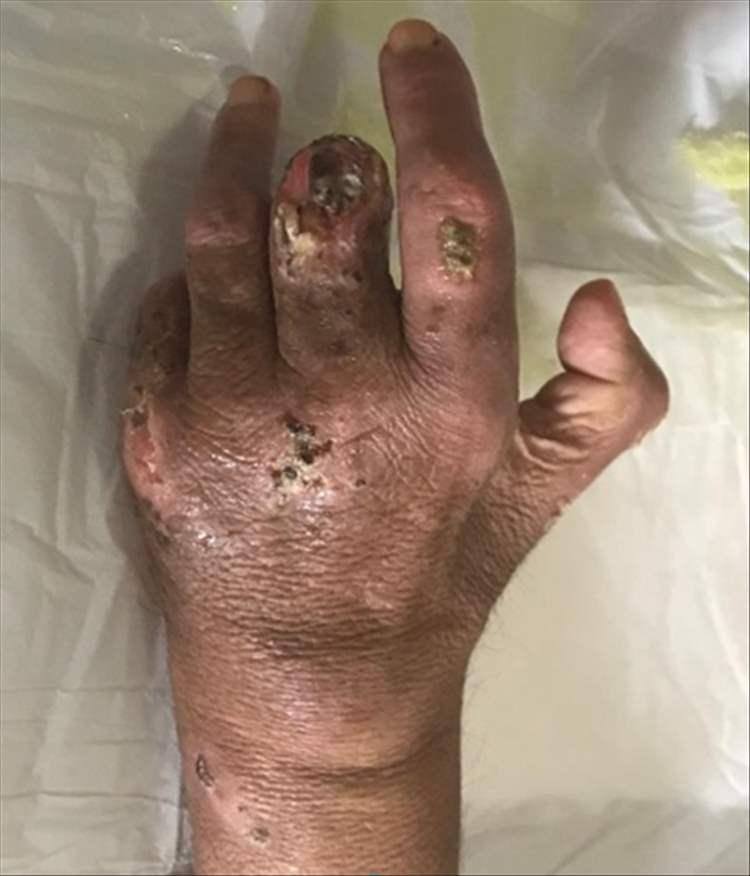 Fig 7. Evolución de las lesiones en mano izquierda