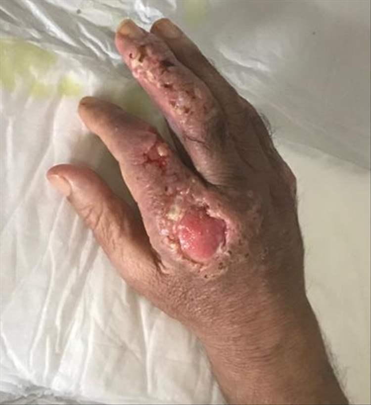 Fig. 8. Evolución de las lesiones en mano derecha.