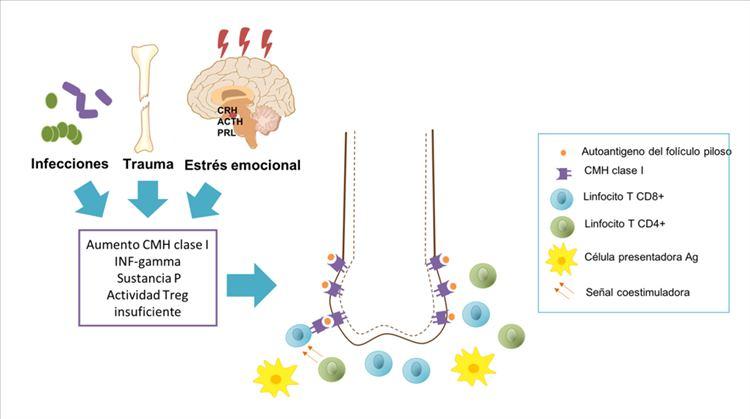 Factores desencadenantes de respuesta autoagresora y moléculas implicadas en la pérdida del privilegio inmune.