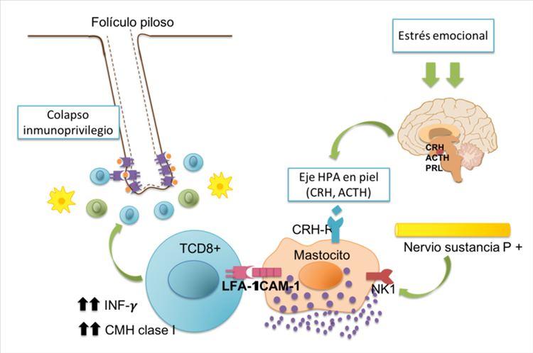 Figura 5. Asociación entre estrés emocional y colapso del inmunoprivilegio. Interacción entre linfocitos TCD8+ y mastocitos, aumento de INF-gamma y CMH clase I.