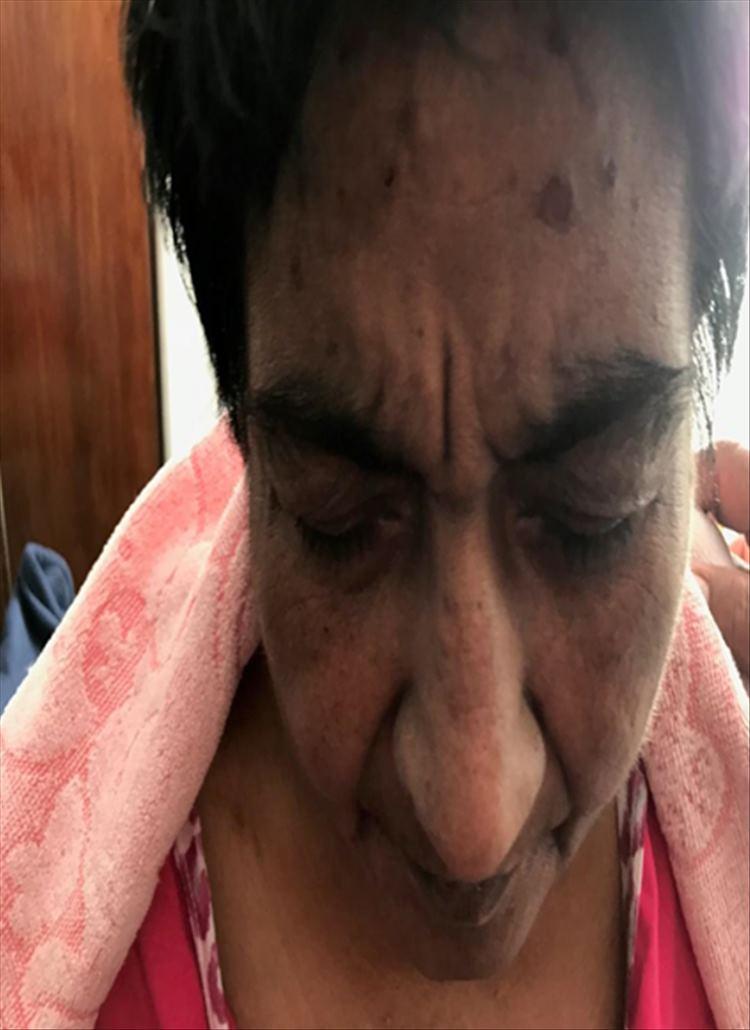 Figura 3 : Lesiones en rostro.