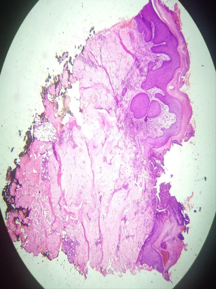 Figura 5: Vista panorámica (4x) de un preparado de piel, teñido con H/E. Solución de continuidad en forma de copa, con invaginación de epidermis e infiltrado inflamatorio difuso