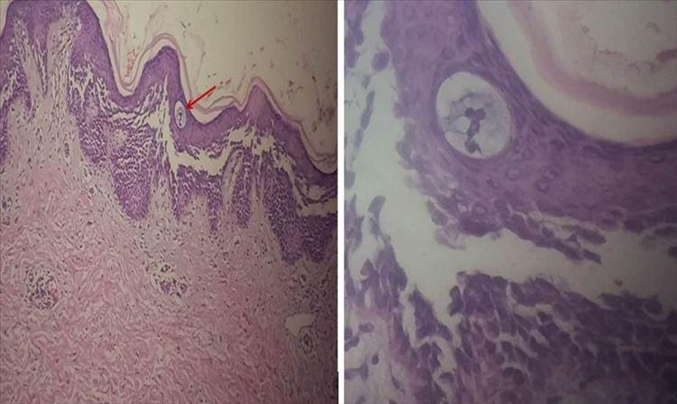 Figura 2: Estudio histopatológico (HE 10x) de muestra de paciente con Enfermedad de Hailey-Hailey, nótese la ampolla intraepidérmica acantolítica (señalada con la flecha en la imagen de la izquierda) y papilas dérmicas elongadas.