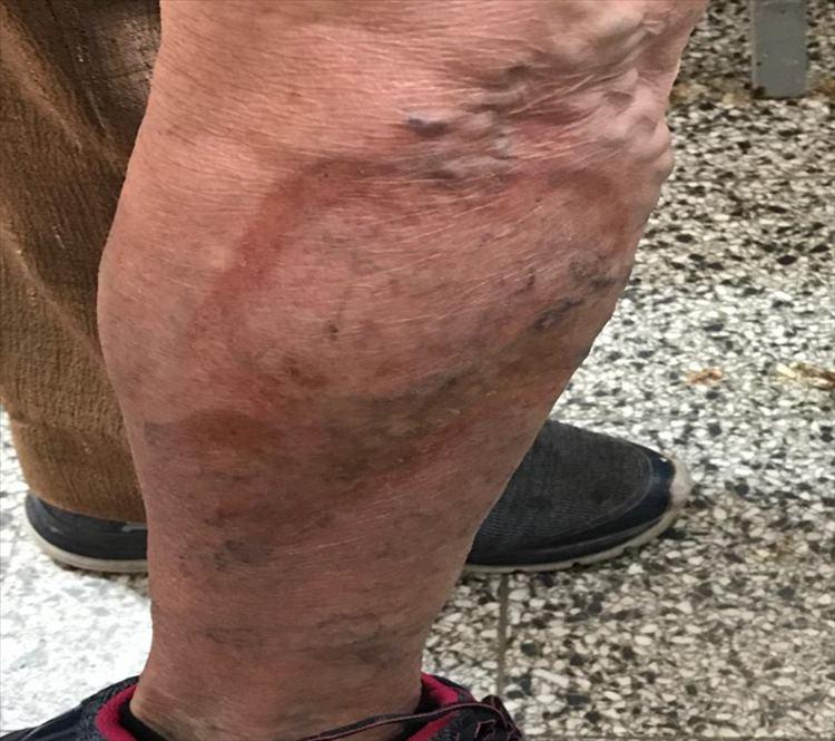 Figura 1- Inicio de lesión anular en pierna