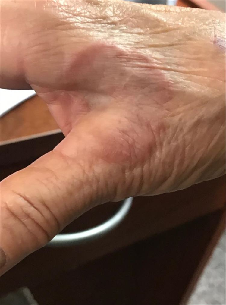 Figura 3- Inicio de lesión anular con borde eritemato-parduzco y centro claro en mano
