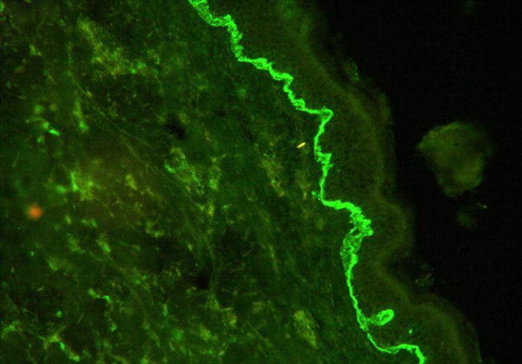 Figura 6: Inmunofluorescencia directa con depósitos en banda lineal de C3 a nivel de la membrana basal.