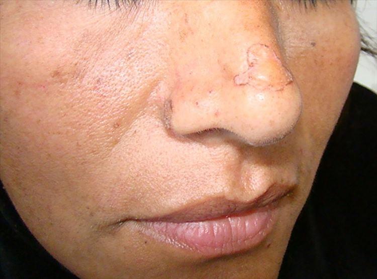 Figura 1: Placa levemente hiperqueratósica de 1 x 1.5 cm de diámetro en región de lóbulo de la nariz, sin alteraciones en la sensibilidad.
