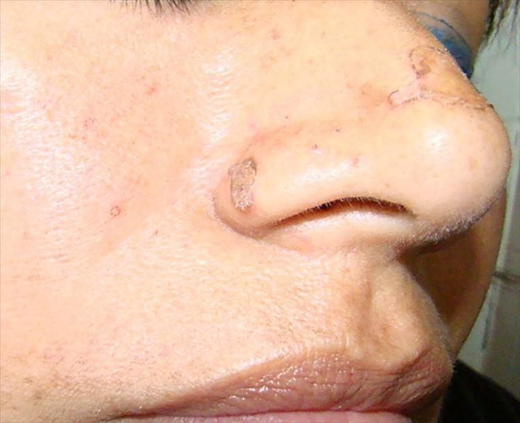 Figura 2: A nivel de borde alar derecho placa hiperqueratósica con borde sobreelevado, compartiendo características con lesión anterior de 1 x 3 mm aproximadamente.