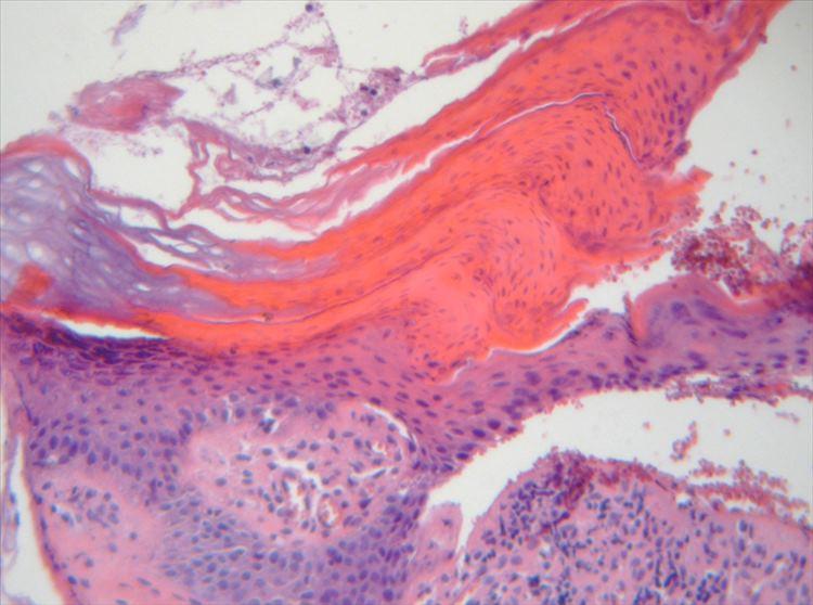 Figura 4: Tinción H-E 400x: lamela cornoide, bajo la cual se observa disminución de capa granulosa. Presencia de un infiltrado inflamatorio linfohistiocitario leve.