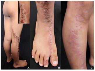 100N2 Figura 1 - Psoriasis linear y Liquen estriado - Revista Argentina de Dermatología