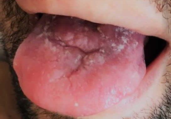 100N2 Sarcoma de Kaposi en pacientes VIH - Revista Argentina de Dermatología