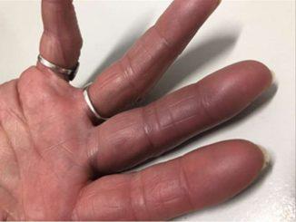 Revista Argentina de Dermatología - 100 - 4 - Hematoma paroxistico de los dedos 3