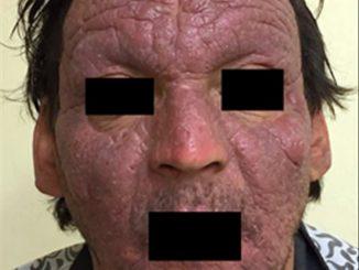 Revista Argentina de Dermatología - 101 - 1 - Dermatitis actínica crónica 1