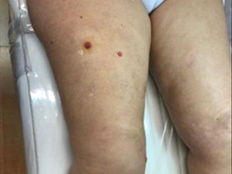 Revista Argentina de Dermatología - 101 - 1 - Metástasis cutánea 1