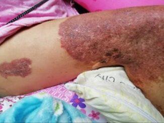 Síndrome de Cloves 2 - Revista Argentina de Dermatología
