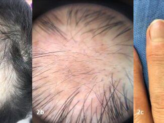 Colapso del inmunoprivilegio y estrés emocional en Alopecia Areata 02