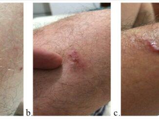 Figura 1. a y b. Lesiones en extremidades inferiores izquierdas. C. Lesiones en extremidad superior izquierda.